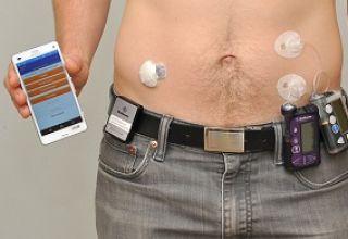 Le pancréas artificiel au secours des diabétiques
