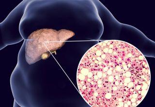 Sémaglutide sous-cutané et traitement de la stéatohépatite non alcoolique