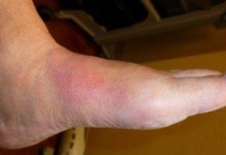 Diabète et pied de Charcot : Rare mais grave